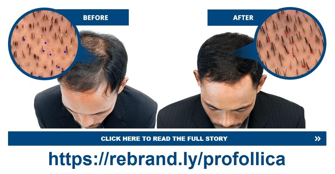 profollica-hair-loss-before-after.jpg